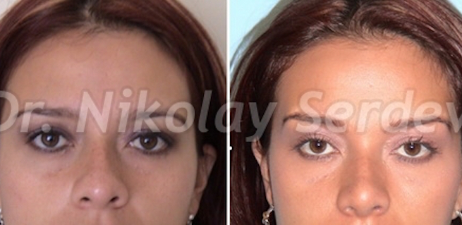 scarless brow lift