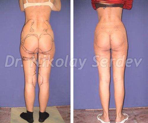 legs liposuction, straightening, elongation