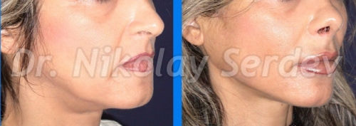 scarless lower face and neck lift