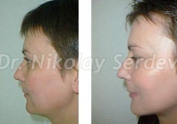 Temporal Lift Without Scars Upper Face Smas Lifting